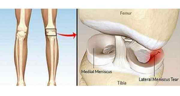regenerate cartilage in your knees  hips and joints