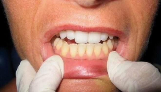 На один зуб толкование