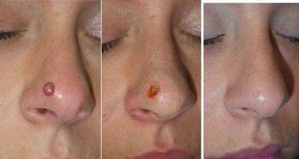 Facial wart vs facial keloid