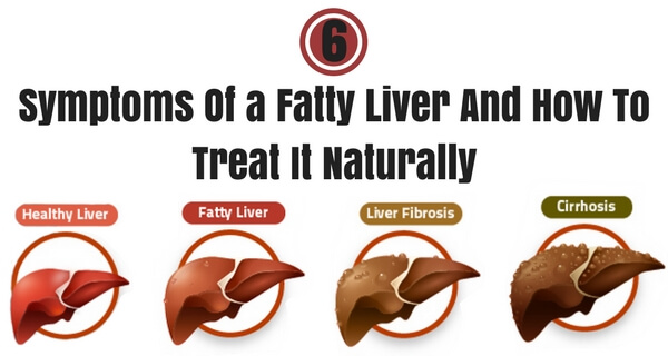 How To Treat Fatty Liver Naturally
